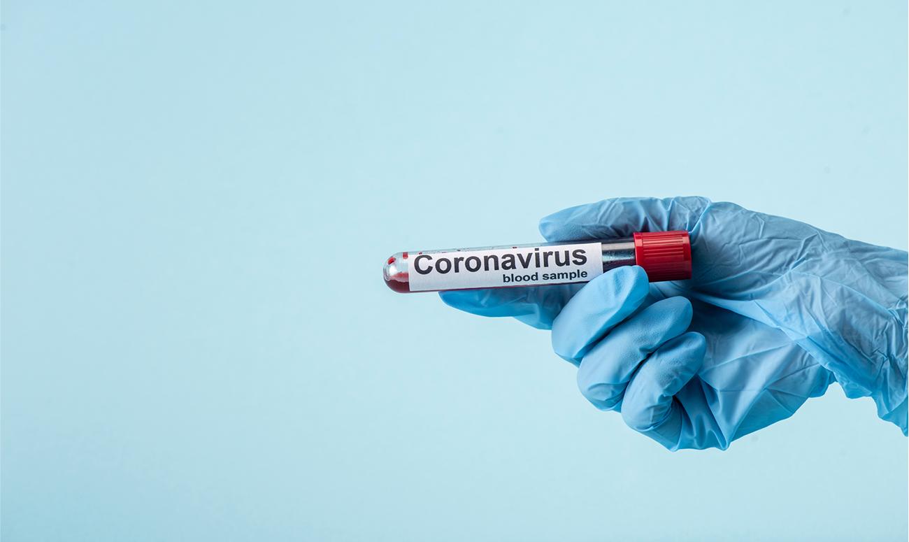 A che punto è la sperimentazione dei vaccini contro la Covid-19?